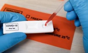 Covid19_antibody_test780x470