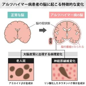 Keiyu_dairenai_05_zu1a